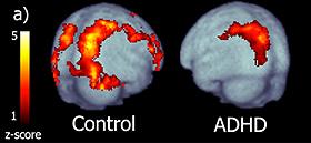 ADHD_neuroscience
